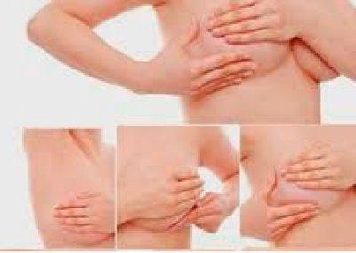 Consejos en la prevención del cáncer de mama